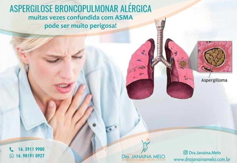 ASPERGILOSE BRONCOPULMONAR ALÉRGICA