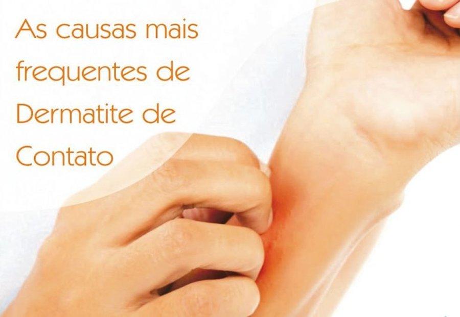 CAUSAS FREQUENTES DE DERMATITE DE CONTATO