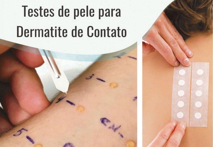 TESTES DE PELE PARA DERMATITES DE CONTATO