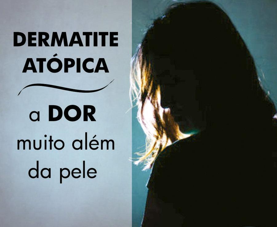 Dermatite Atópica - Preconceito