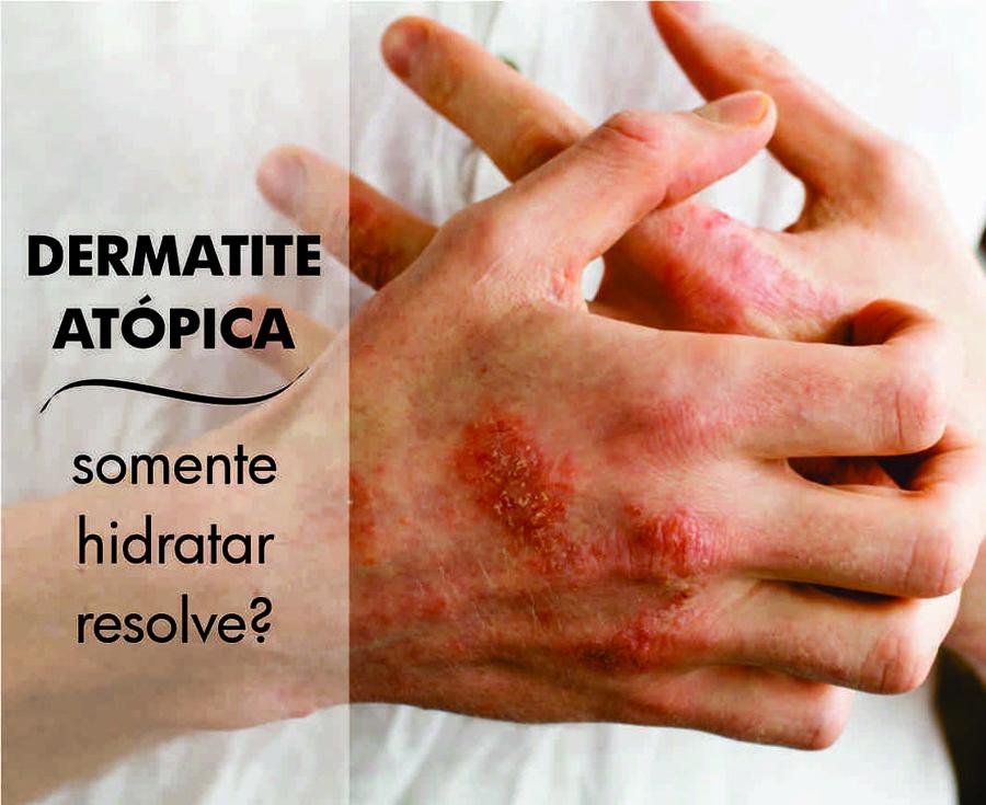 Dermatite Atópica - Só Hidratar Resolve?