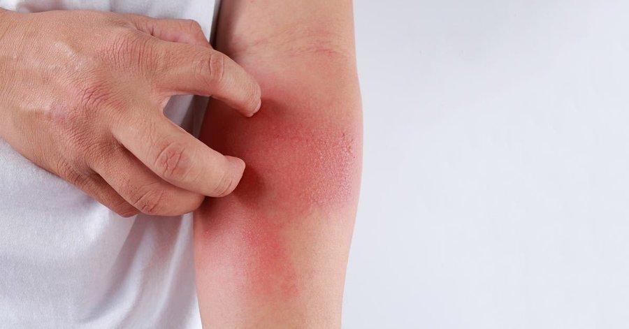 Dermatite de contato por corticoide