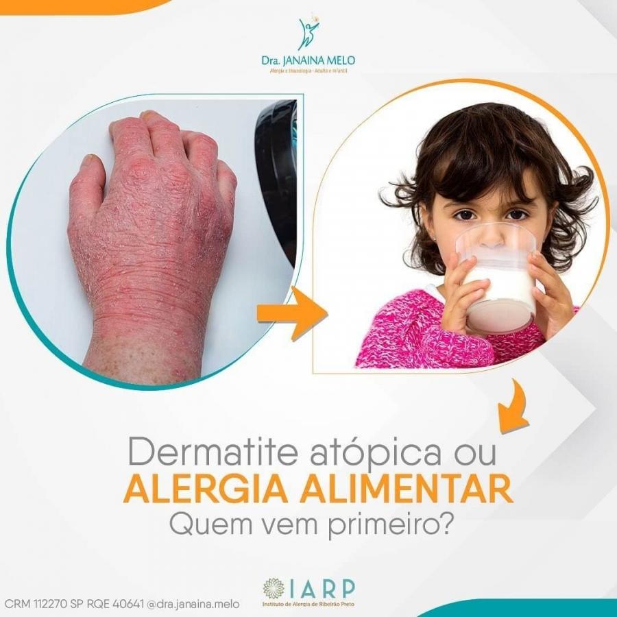 Dermatite Atópica ou Alergia Alimentar