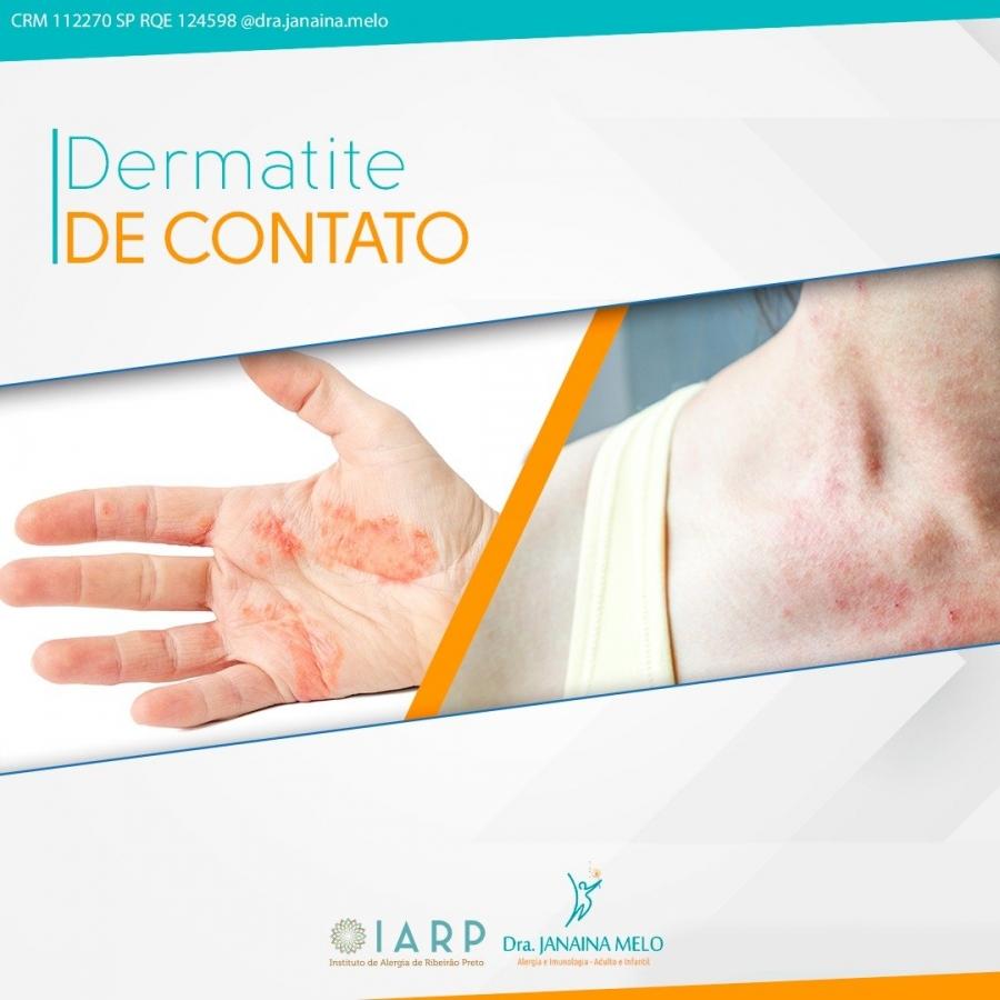 Dermatites de Contato