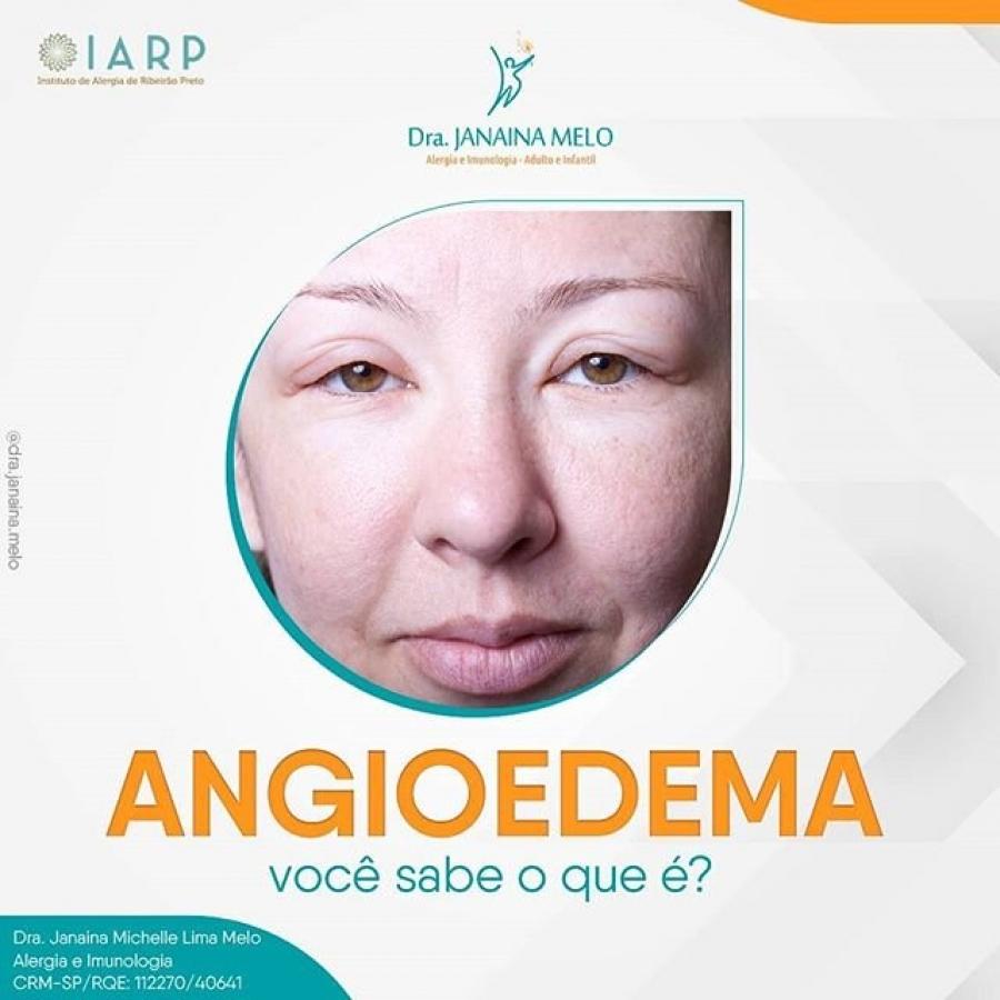 O que é Angioedema?
