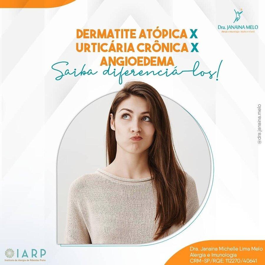 Como diferenciar Dermatite Atópica, Urticária Crônica e Angioedema?