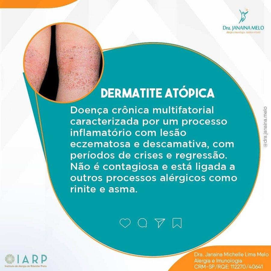 Dermatite Atópica!