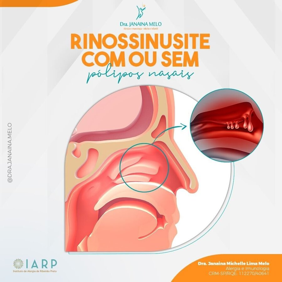 Rinossinusite com ou sem pólipos nasais