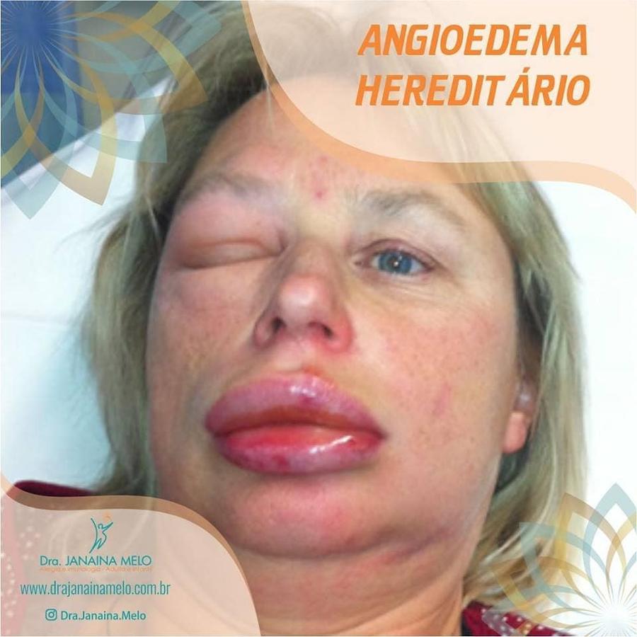 Angioedema Hereditário (AEH)