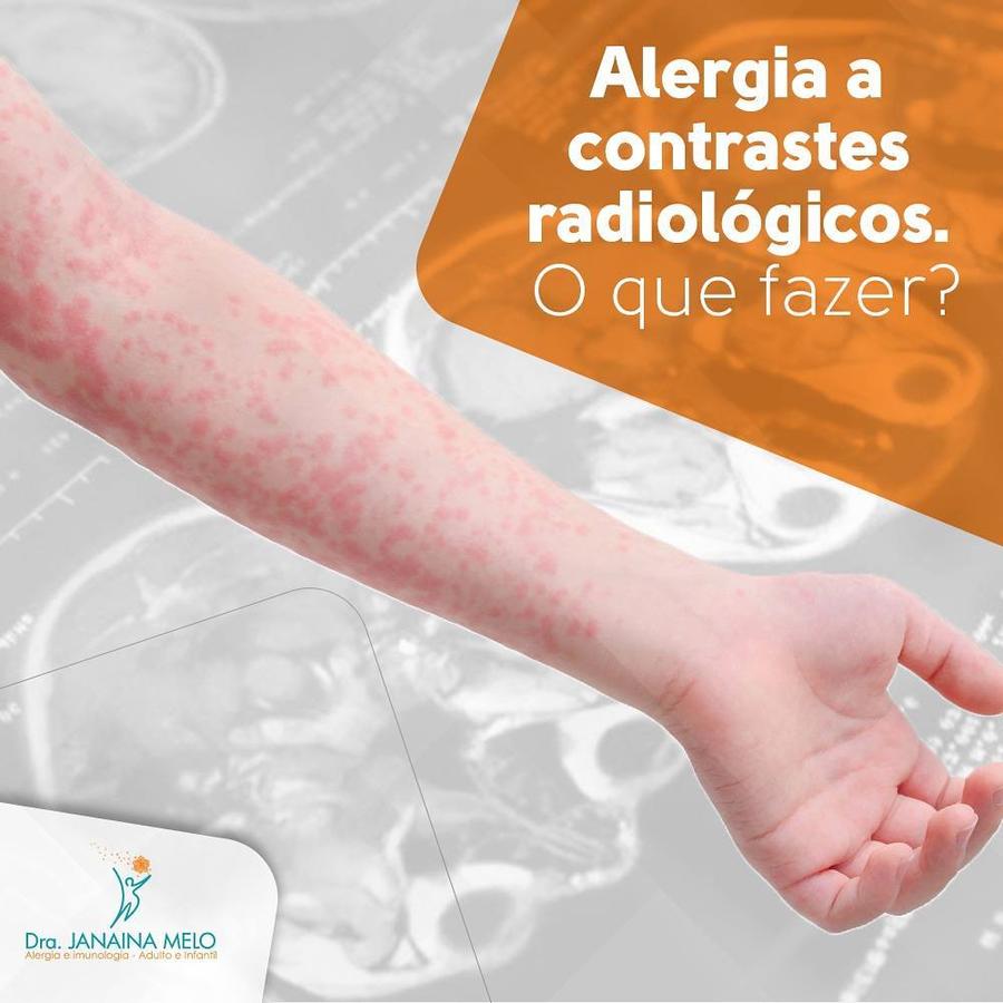 Alergia a contrastes Radiológicos