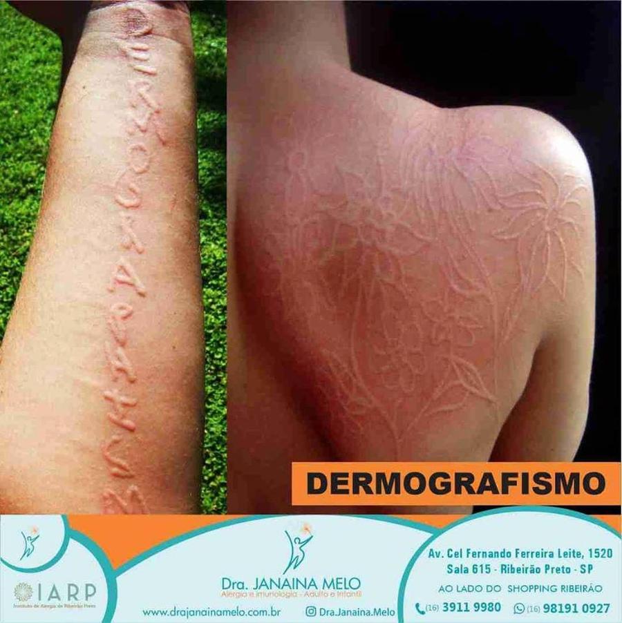 Dermografismo - saiba mais