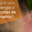 Alergia a Picadas de Insetos
